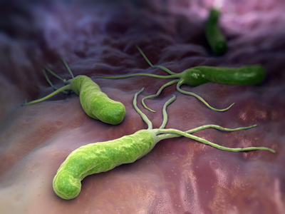helikobacter